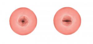 Шейка матки у нерожавших и рожавших женщин